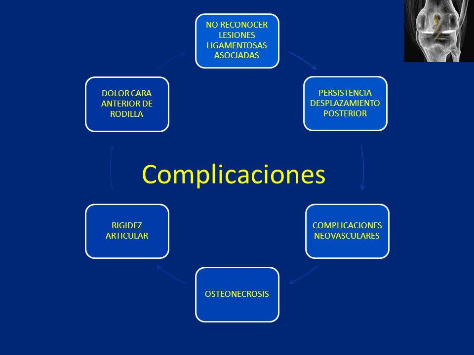 NO RECONOCER LESIONES LIGAMENTOSAS ASOCIADAS PERSISTENCIA DESPLAZAMIENTO POSTERIOR COMPLICACIONES NEOVASCULARES OSTEONECROSIS RIGIDEZ ARTICULAR DOLOR CARA ANTERIOR DE RODILLA Complicaciones