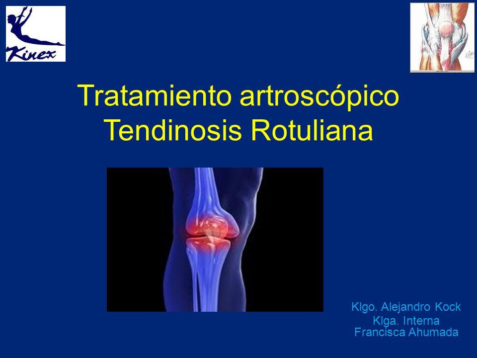 Tratamiento artroscópico Tendinosis Rotuliana Klgo. Alejandro Kock Klga. Interna Francisca Ahumada