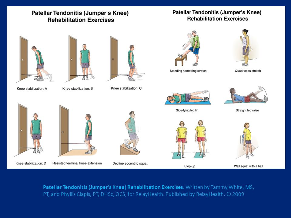 Patellar Tendonitis (Jumper's Knee) Rehabilitation Exercises. Written by Tammy White, MS, PT, and Phyllis Clapis, PT, DHSc, OCS, for RelayHealth. Publ