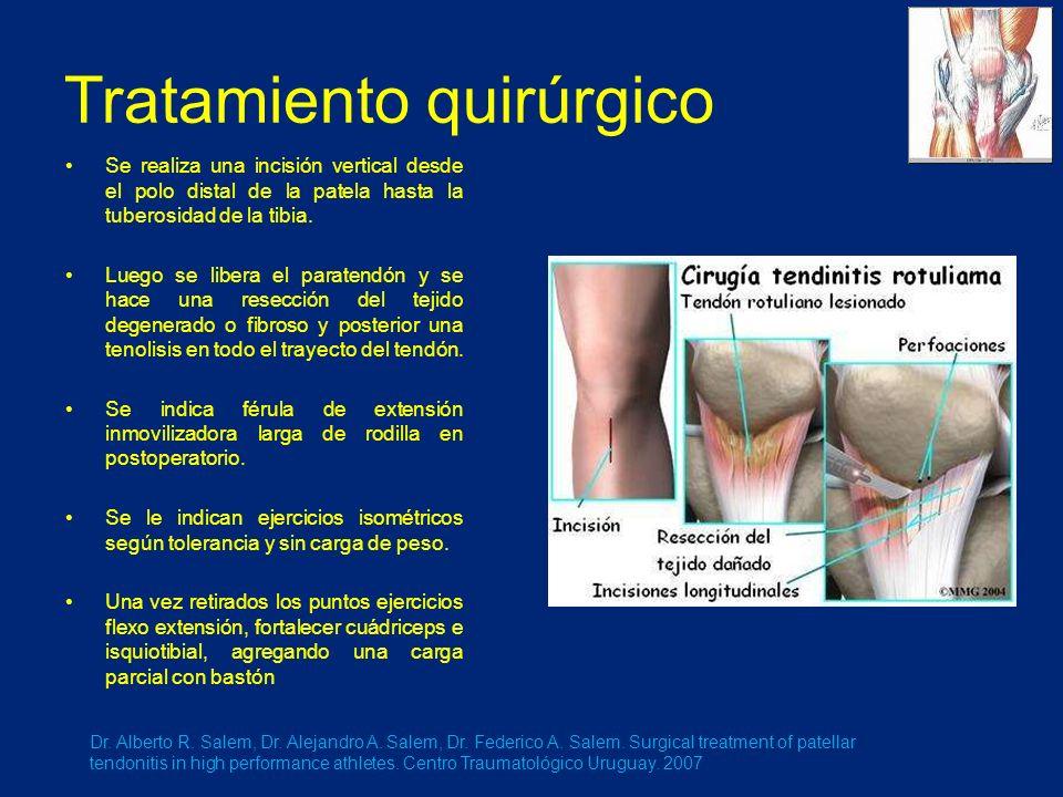 Tratamiento quirúrgico Se realiza una incisión vertical desde el polo distal de la patela hasta la tuberosidad de la tibia.