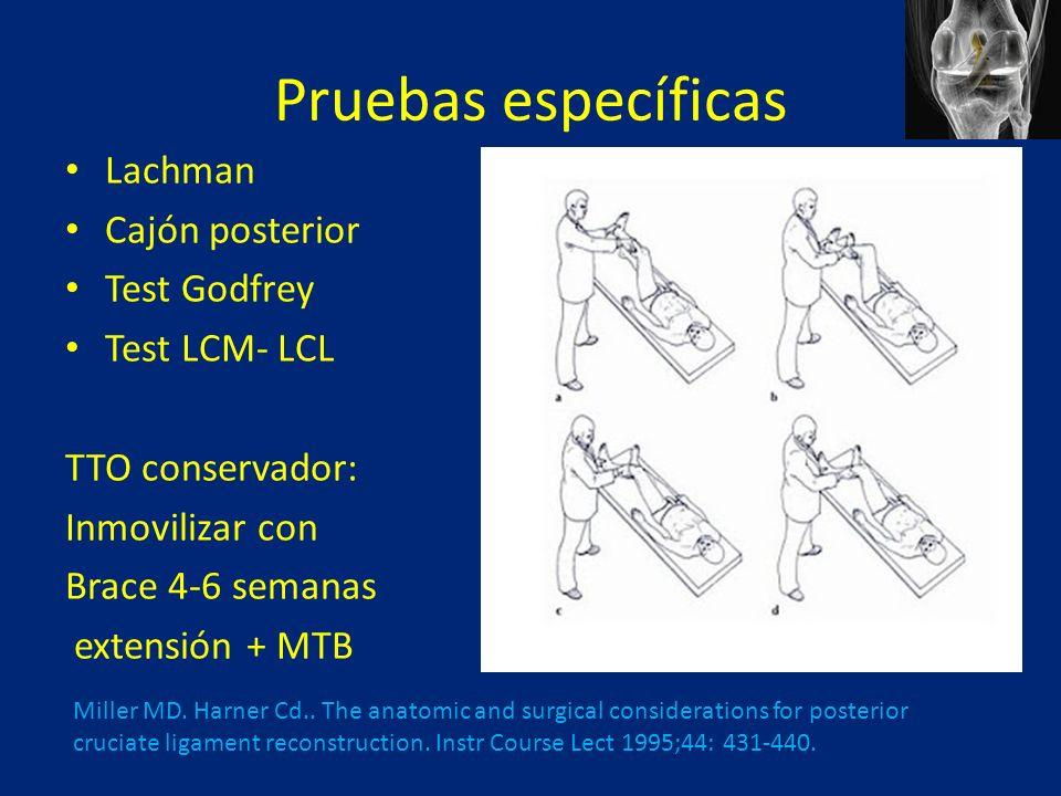 Pruebas específicas Lachman Cajón posterior Test Godfrey Test LCM- LCL TTO conservador: Inmovilizar con Brace 4-6 semanas extensión + MTB Miller MD.