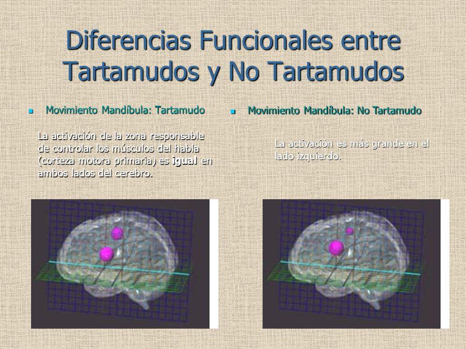 Diferencias Funcionales entre Tartamudos y No Tartamudos Movimiento Mandíbula: Tartamudo Movimiento Mandíbula: Tartamudo Movimiento Mandíbula: No Tartamudo Movimiento Mandíbula: No Tartamudo La activación de la zona responsable de controlar los músculos del habla (corteza motora primaria) es igual en ambos lados del cerebro.
