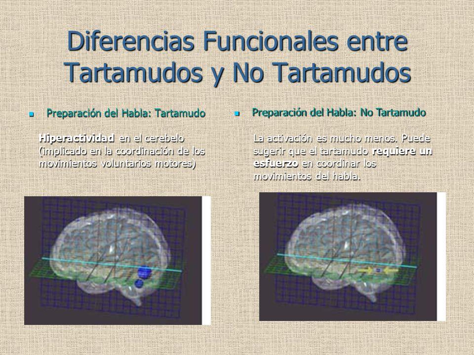 Diferencias Funcionales entre Tartamudos y No Tartamudos Preparación del Habla: Tartamudo Preparación del Habla: Tartamudo Preparación del Habla: No Tartamudo Preparación del Habla: No Tartamudo Hiperactividad en el cerebelo (implicado en la coordinación de los movimientos voluntarios motores) La activación es mucho menos.