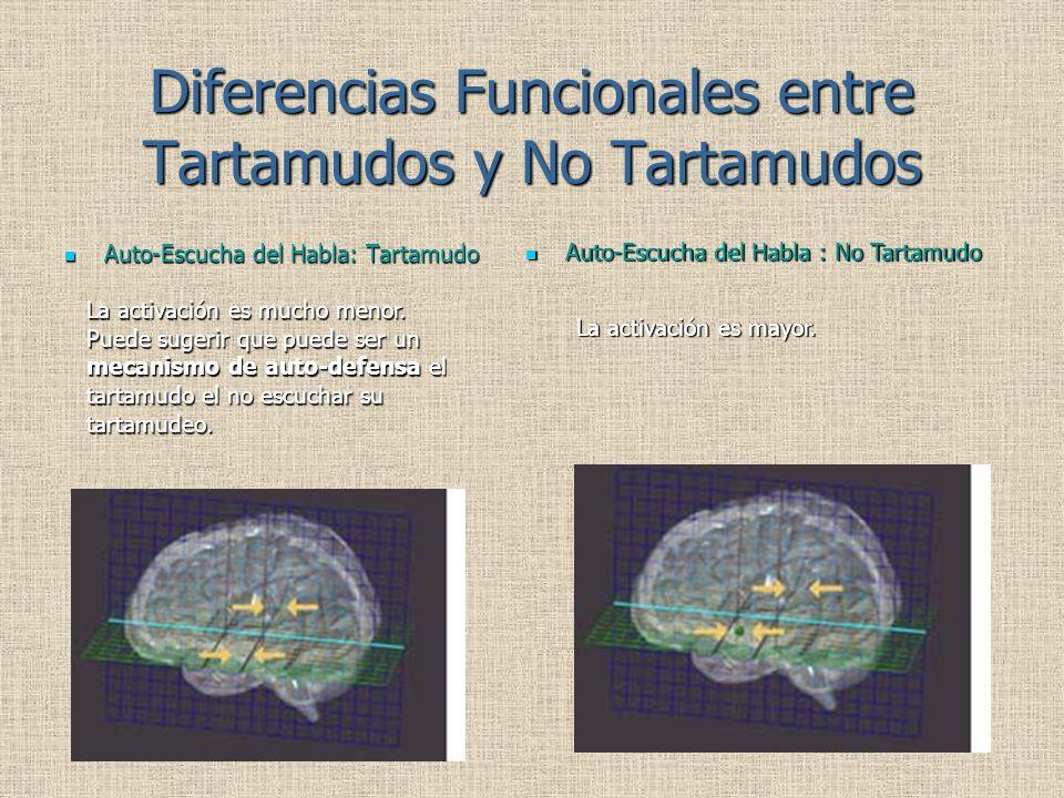 Diferencias Funcionales entre Tartamudos y No Tartamudos Auto-Escucha del Habla: Tartamudo Auto-Escucha del Habla: Tartamudo Auto-Escucha del Habla : No Tartamudo Auto-Escucha del Habla : No Tartamudo La activación es mucho menor.