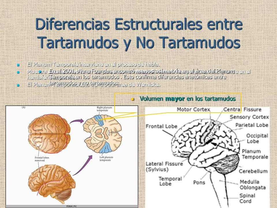 Diferencias Estructurales entre Tartamudos y No Tartamudos El Planum Temporale interviene en el proceso de habla. El Planum Temporale interviene en el