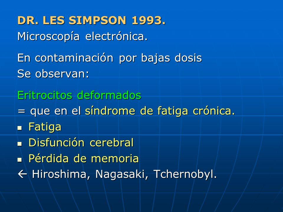 DR. LES SIMPSON 1993. Microscopía electrónica. En contaminación por bajas dosis Se observan: Eritrocitos deformados = que en el síndrome de fatiga cró