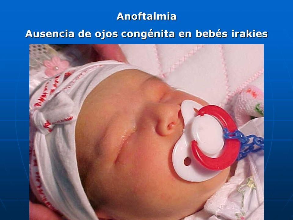 Bebés nacidos en Iraq sin ojos, (anoftalmos) en 2002: 20 casos cada 4.000 nacimientos.