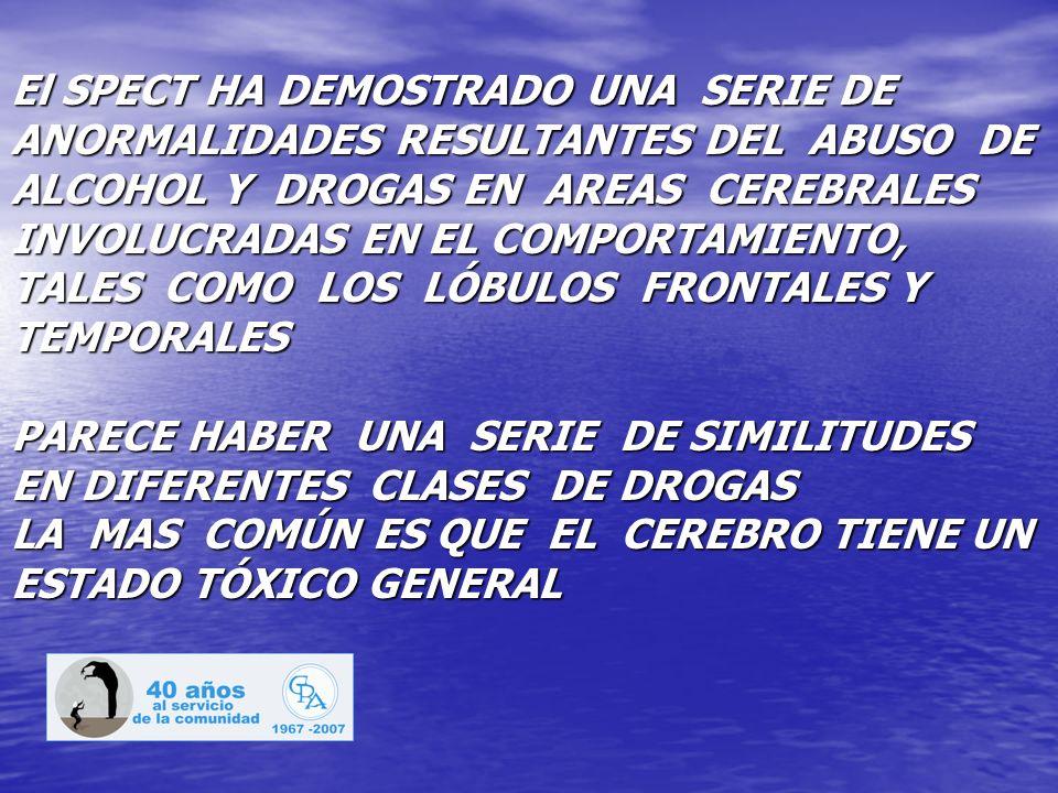 El SPECT HA DEMOSTRADO UNA SERIE DE ANORMALIDADES RESULTANTES DEL ABUSO DE ALCOHOL Y DROGAS EN AREAS CEREBRALES INVOLUCRADAS EN EL COMPORTAMIENTO, TAL