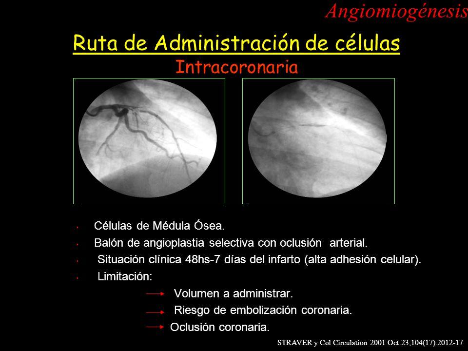 Células de Médula Ósea. Balón de angioplastia selectiva con oclusión arterial. Situación clínica 48hs-7 días del infarto (alta adhesión celular). Limi