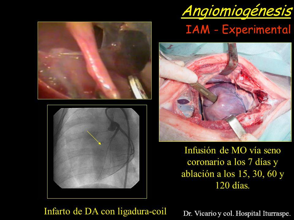 Infarto de DA con ligadura-coil Infusión de MO vía seno coronario a los 7 días y ablación a los 15, 30, 60 y 120 días. Dr. Vicario y col. Hospital Itu