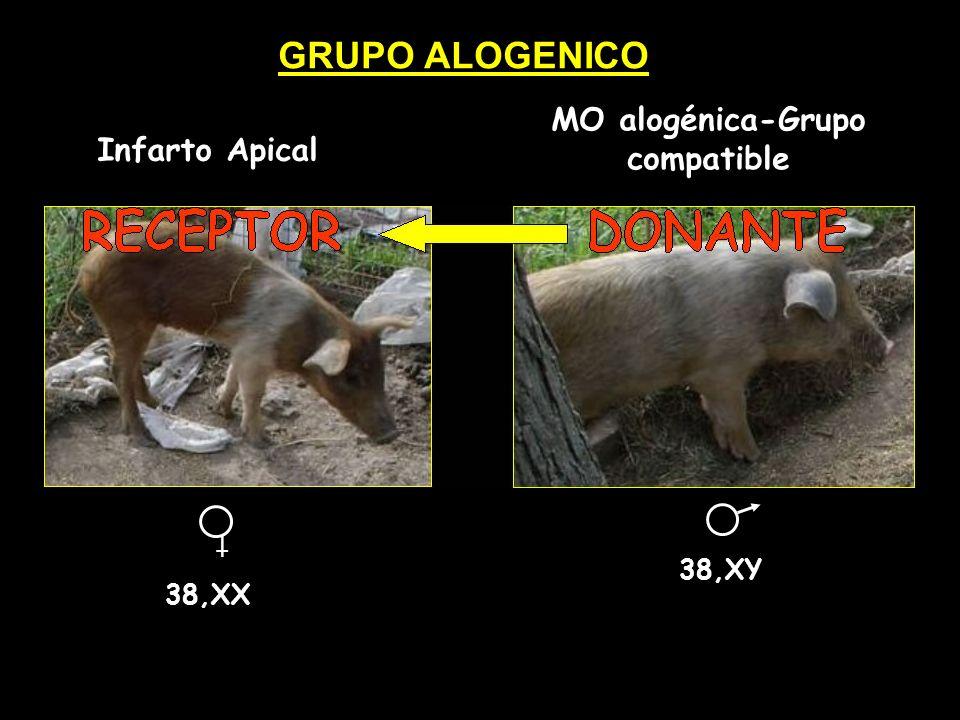 Infarto Apical MO alogénica-Grupo compatible 38,XX 38,XY GRUPO ALOGENICO