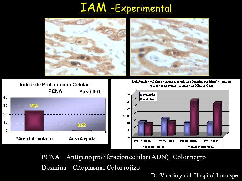 IAM - Experimental PCNA = Antígeno proliferación celular (ADN). Color negro Desmina = Citoplasma. Color rojizo Dr. Vicario y col. Hospital Iturraspe.