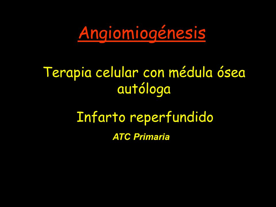 Infarto reperfundido Angiomiogénesis Terapia celular con médula ósea autóloga ATC Primaria