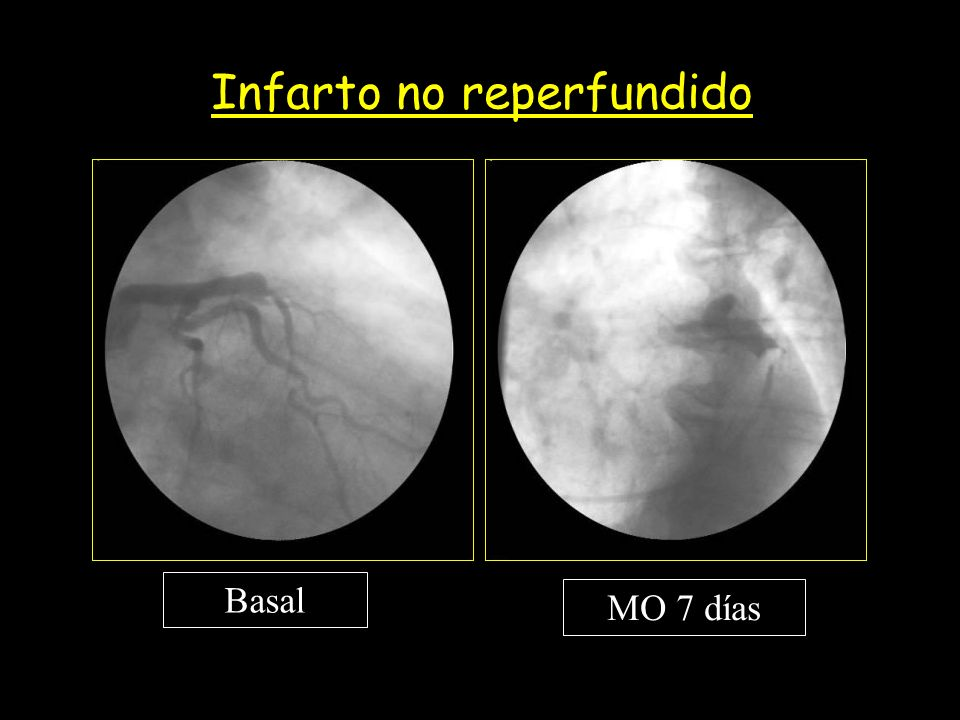 Basal MO 7 días Infarto no reperfundido
