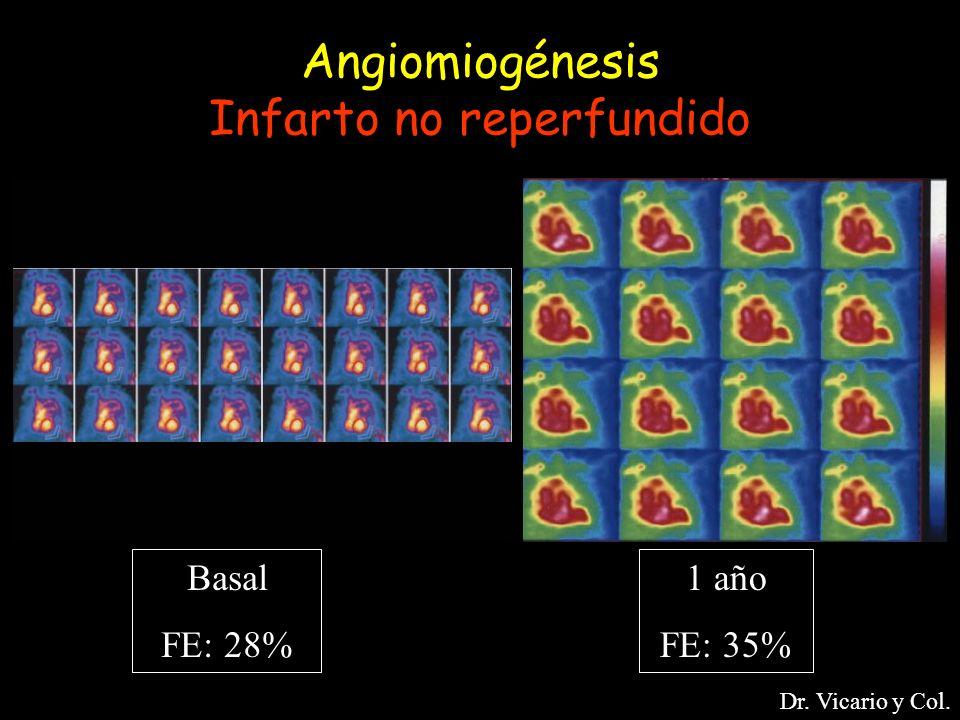 Angiomiogénesis Infarto no reperfundido Basal FE: 28% 1 año FE: 35% Dr. Vicario y Col.