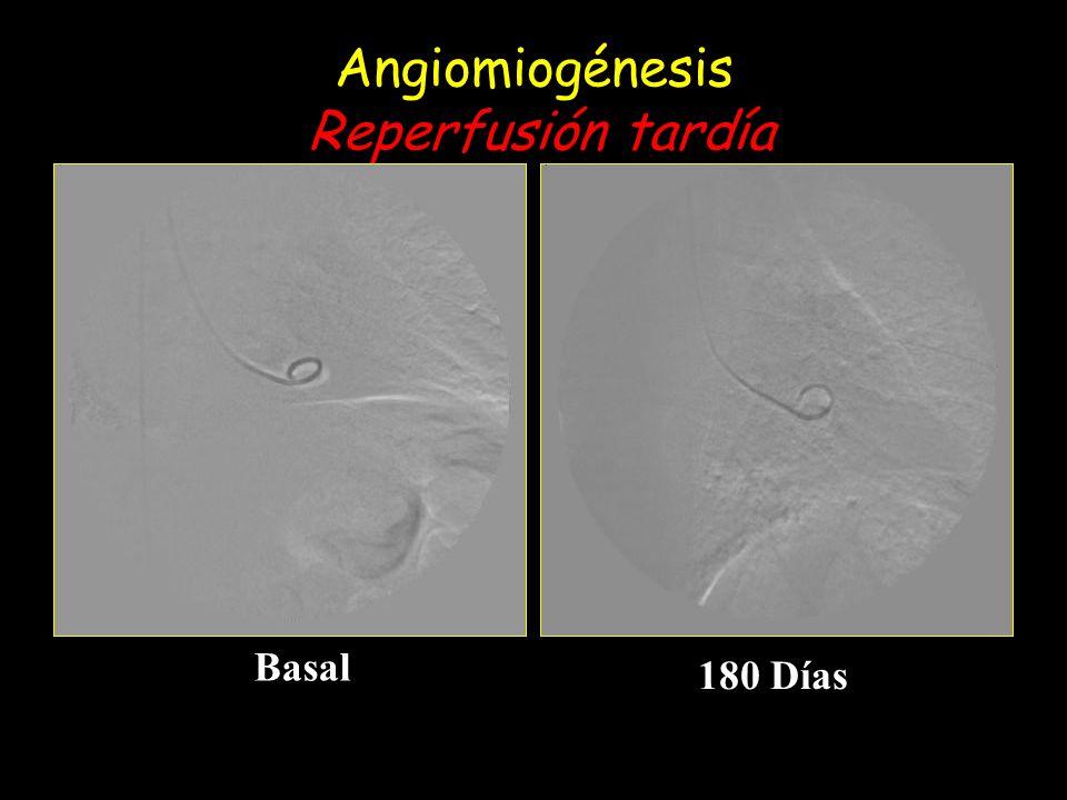 Angiomiogénesis Reperfusión tardía Basal 180 Días