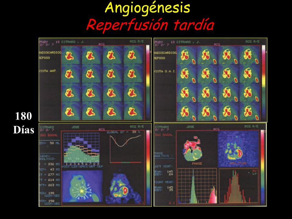 Angiogénesis Reperfusión tardía 180 Días