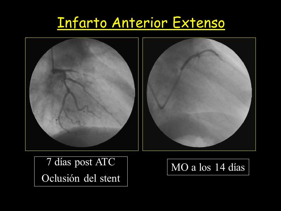 MO a los 14 días 7 días post ATC Oclusión del stent Infarto Anterior Extenso