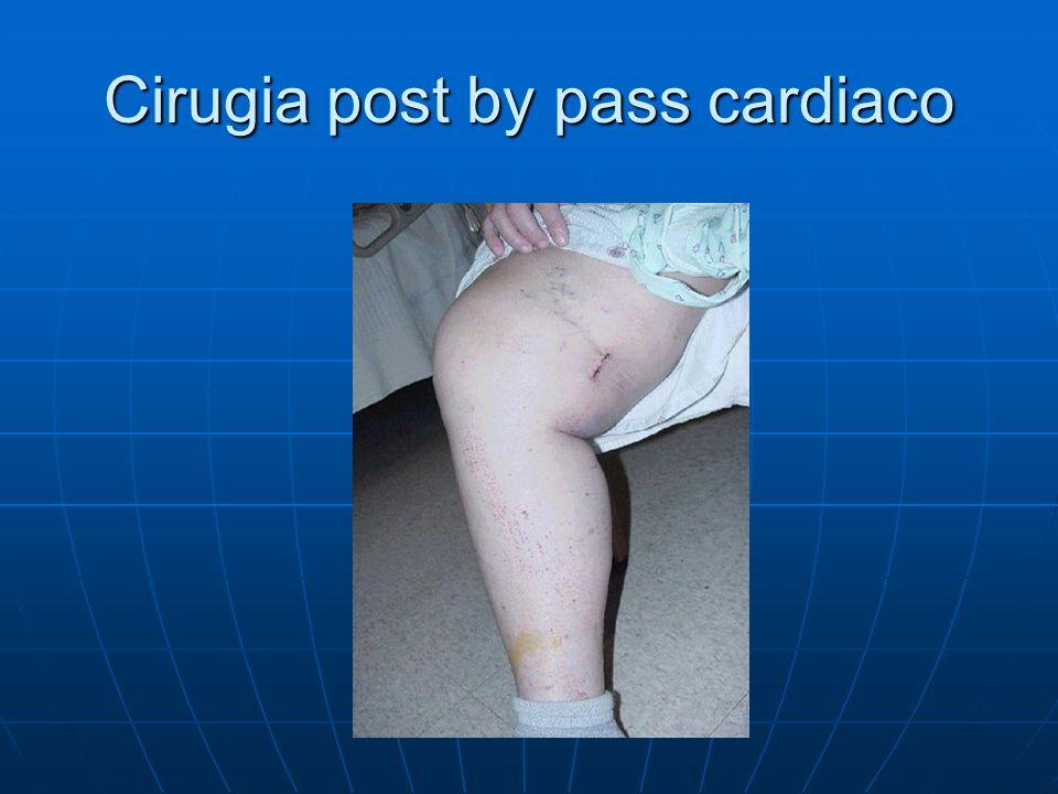 Cirugia post by pass cardiaco