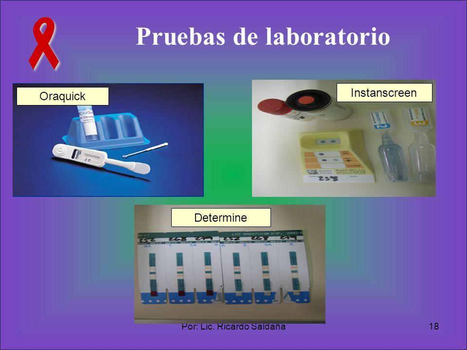 Por: Lic. Ricardo Saldaña18 Pruebas de laboratorio Oraquick Determine Instanscreen