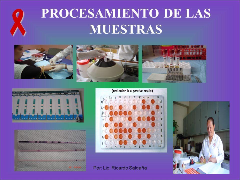 Por: Lic. Ricardo Saldaña22 PROCESAMIENTO DE LAS MUESTRAS