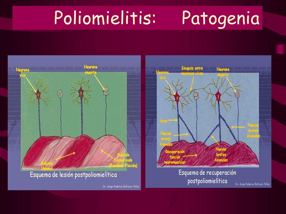 Poliomielitis: Patogenia