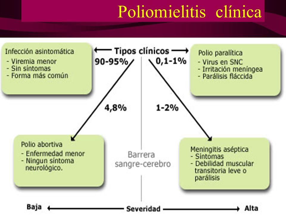Poliomielitis clínica