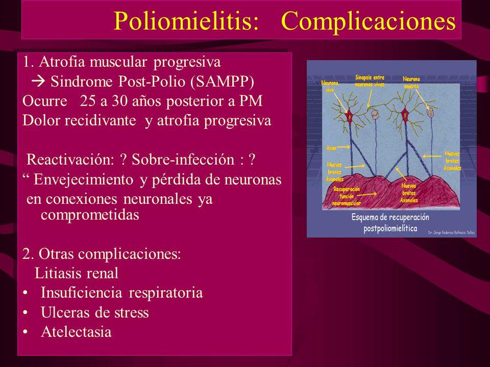 Poliomielitis: Complicaciones 1. Atrofia muscular progresiva Sindrome Post-Polio (SAMPP) Ocurre 25 a 30 años posterior a PM Dolor recidivante y atrofi
