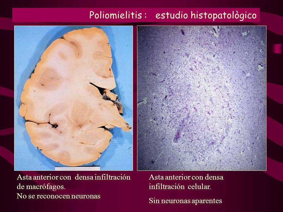 Asta anterior con densa infiltración de macrófagos. No se reconocen neuronas Asta anterior con densa infiltración celular. Sin neuronas aparentes Poli