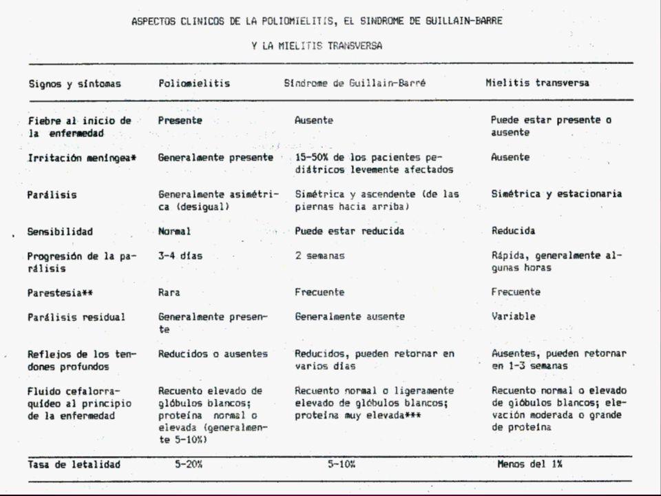 Poliomielitis