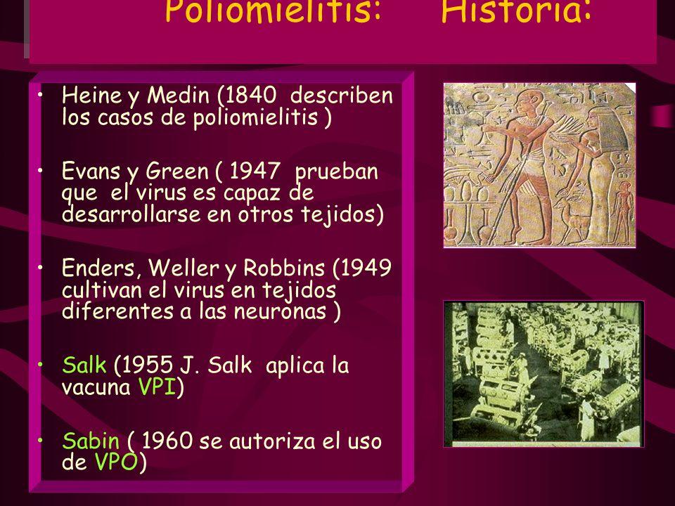 Poliomielitis: Historia : Heine y Medin (1840 describen los casos de poliomielitis ) Evans y Green ( 1947 prueban que el virus es capaz de desarrollar