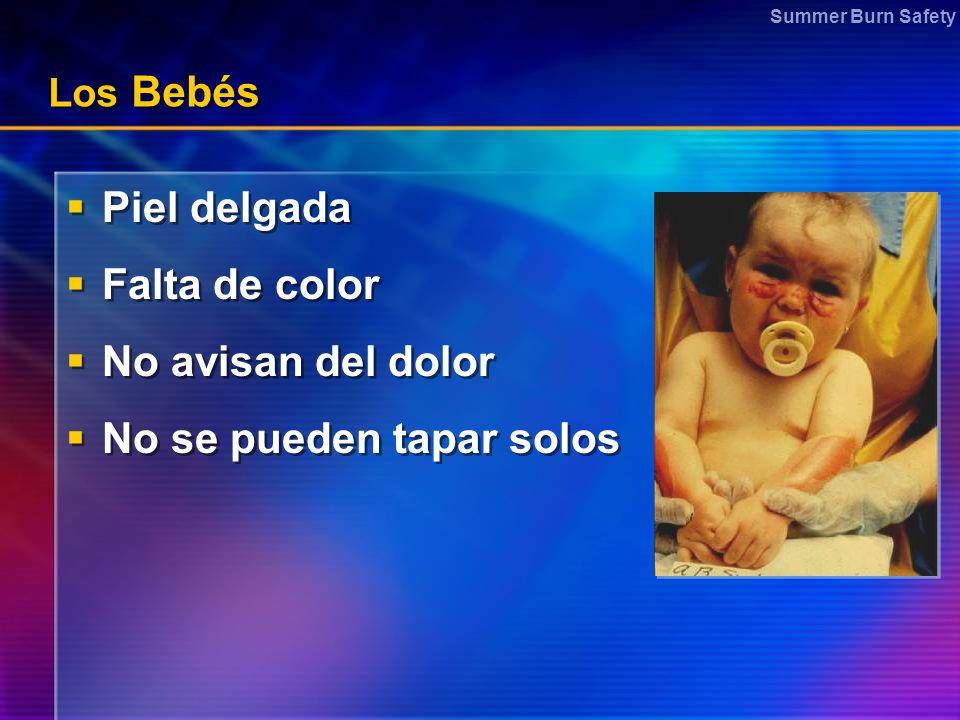 Summer Burn Safety Los Bebés Piel delgada Falta de color No avisan del dolor No se pueden tapar solos Piel delgada Falta de color No avisan del dolor