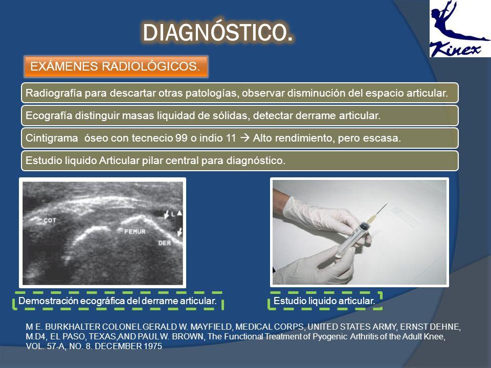 EXÁMENES RADIOLÓGICOS. Radiografía para descartar otras patologías, observar disminución del espacio articular.Ecografía distinguir masas liquidad de