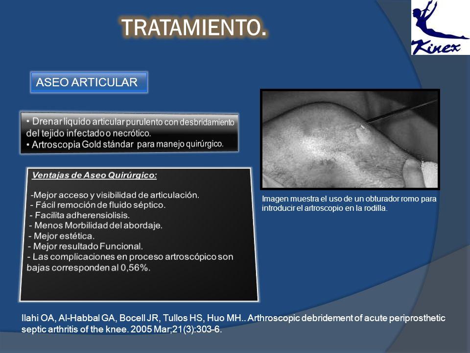 ASEO ARTICULAR Imagen muestra el uso de un obturador romo para introducir el artroscopio en la rodilla. Ilahi OA, Al-Habbal GA, Bocell JR, Tullos HS,