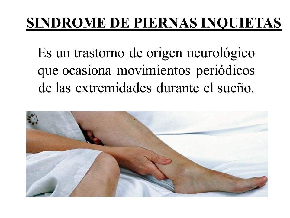 SINDROME DE PIERNAS INQUIETAS Es un trastorno de origen neurológico que ocasiona movimientos periódicos de las extremidades durante el sueño.