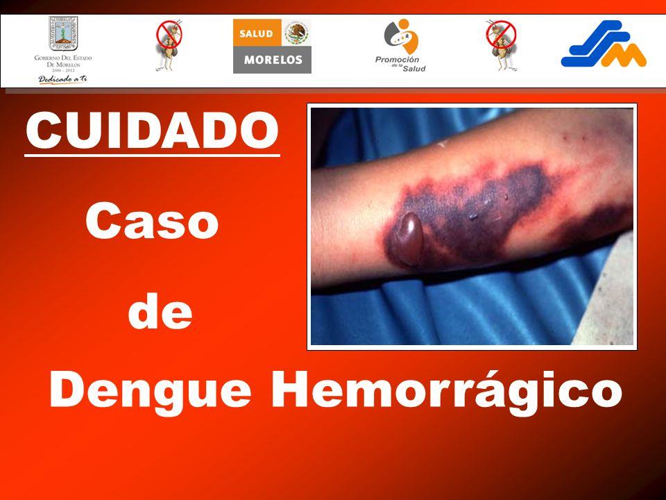 Dengue Hemorrágico CUIDADO Caso de