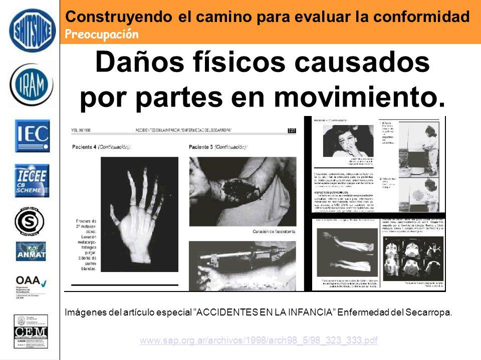 Daños físicos causados por partes en movimiento. Imágenes del artículo especial ACCIDENTES EN LA INFANCIA Enfermedad del Secarropa. www.sap.org.ar/arc
