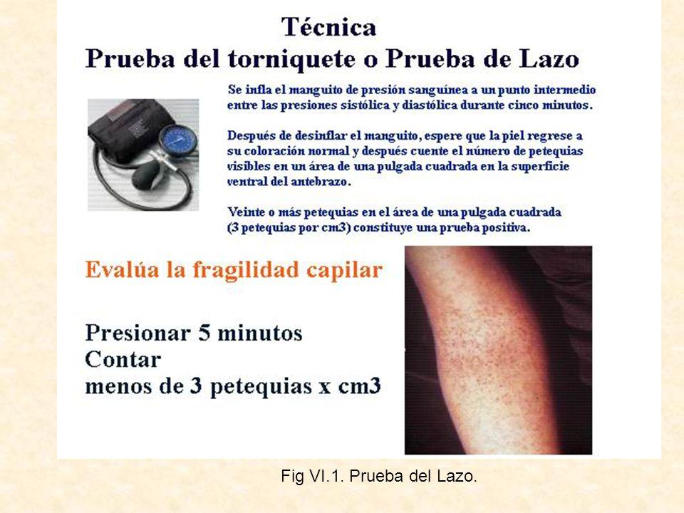 Fig VI.1. Prueba del Lazo.