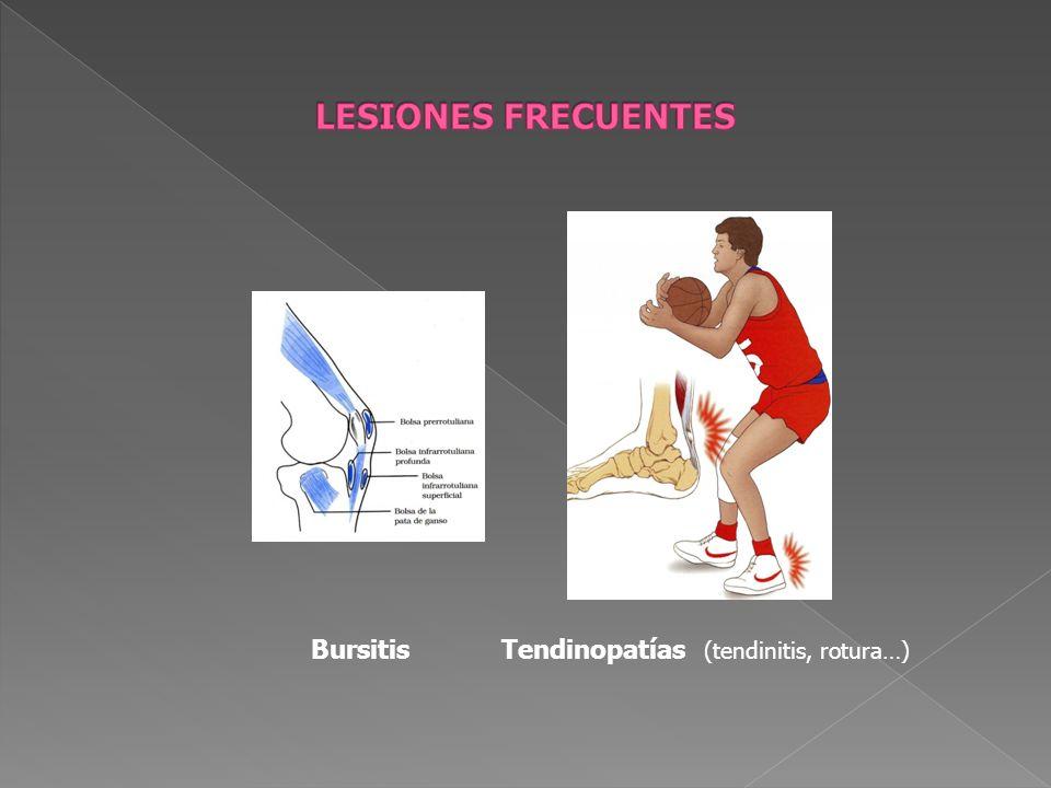 Bursitis Tendinopatías (tendinitis, rotura…)