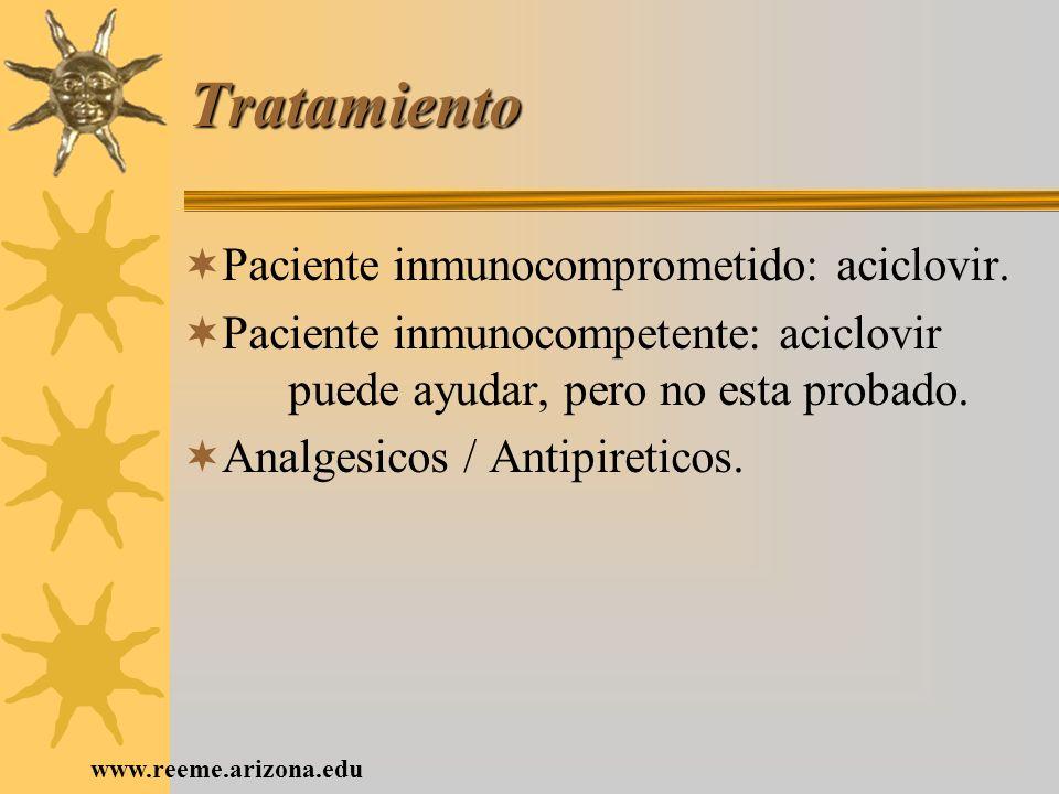 www.reeme.arizona.edu Tratamiento Paciente inmunocomprometido: aciclovir. Paciente inmunocompetente: aciclovir puede ayudar, pero no esta probado. Ana