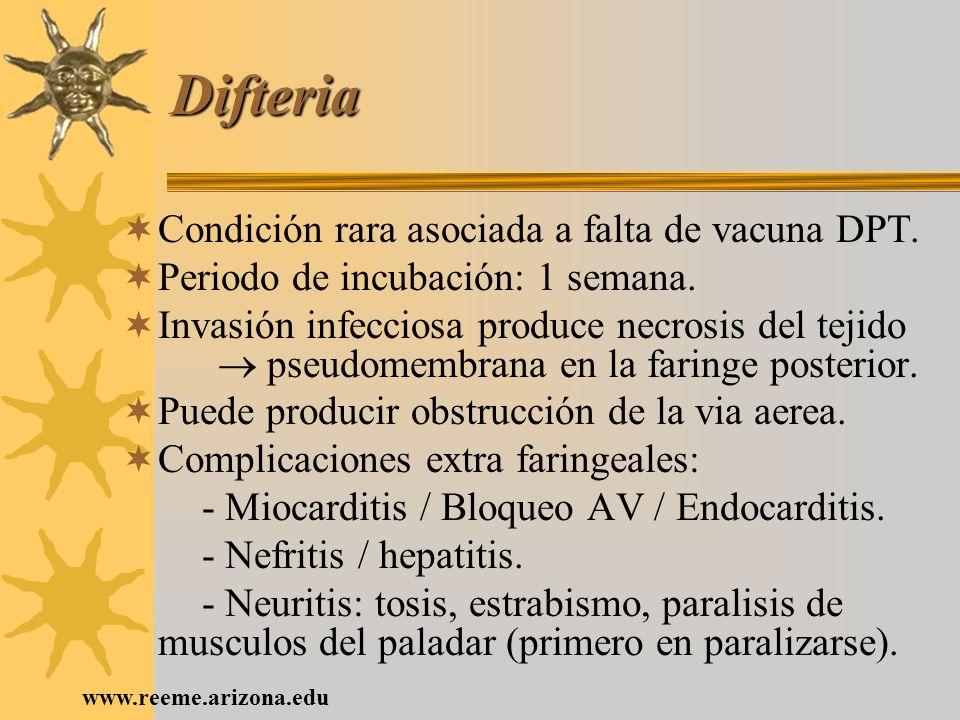 www.reeme.arizona.edu Difteria Condición rara asociada a falta de vacuna DPT. Periodo de incubación: 1 semana. Invasión infecciosa produce necrosis de