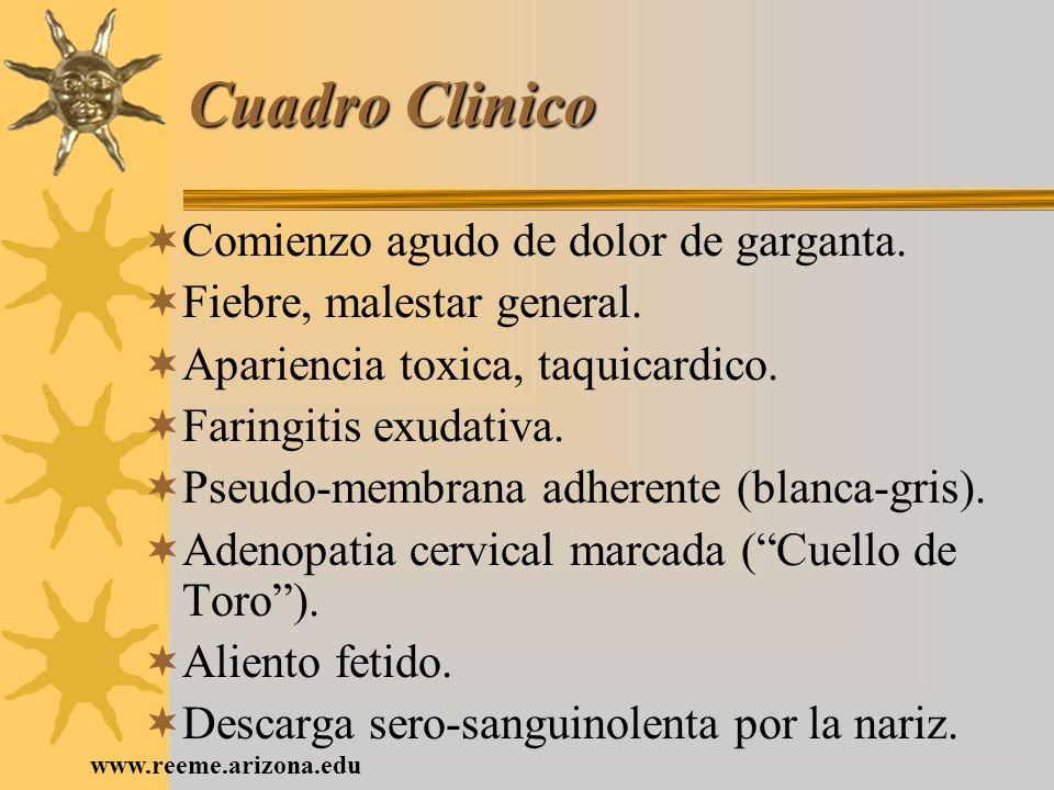www.reeme.arizona.edu Cuadro Clinico Comienzo agudo de dolor de garganta. Fiebre, malestar general. Apariencia toxica, taquicardico. Faringitis exudat
