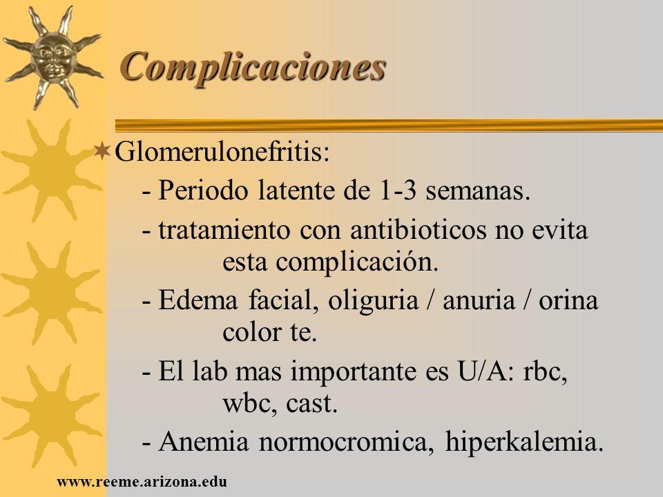 www.reeme.arizona.edu Complicaciones Glomerulonefritis: - Periodo latente de 1-3 semanas. - tratamiento con antibioticos no evita esta complicación. -