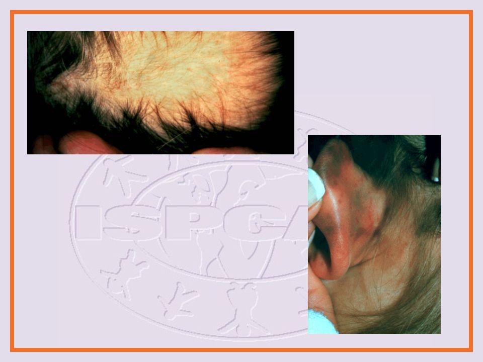 Examinación Física Ojo Esclera petequias Hemorragia sub- conjuntival Escleróticas azules Hemorragia de la retina Boca Contusiones labiales o bucales Frenulae roto Laceración faríngea