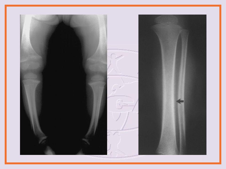 Imaging Intracranial Imaging CT MRI Niños <6 meses de edad Niños<1 año de edad con lesiones de cara o cabeza, fracturas de costillas o CML Abdominal Imaging CT Ultrasonido Radiografía regular Radiografía de contraste