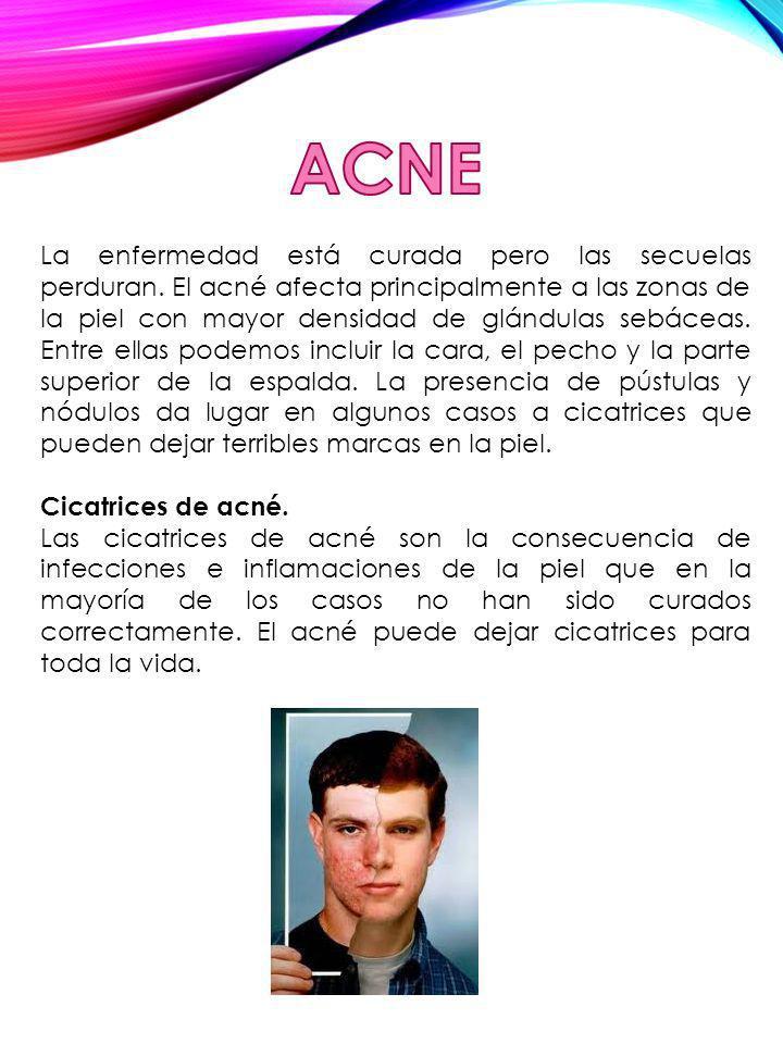 La enfermedad está curada pero las secuelas perduran. El acné afecta principalmente a las zonas de la piel con mayor densidad de glándulas sebáceas. E