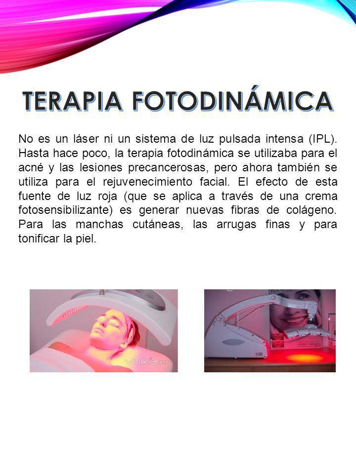 No es un láser ni un sistema de luz pulsada intensa (IPL). Hasta hace poco, la terapia fotodinámica se utilizaba para el acné y las lesiones precancer
