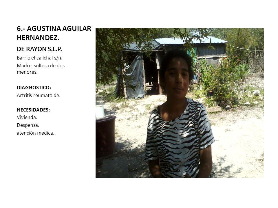 6.- AGUSTINA AGUILAR HERNANDEZ. DE RAYON S.L.P. Barrio el calíchal s/n. Madre soltera de dos menores. DIAGNOSTICO: Artritis reumatoide. NECESIDADES: V