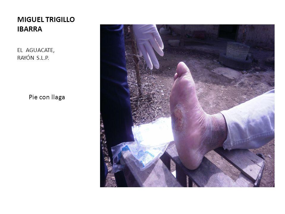 MIGUEL TRIGILLO IBARRA EL AGUACATE, RAYÓN S.L.P. Pie con llaga