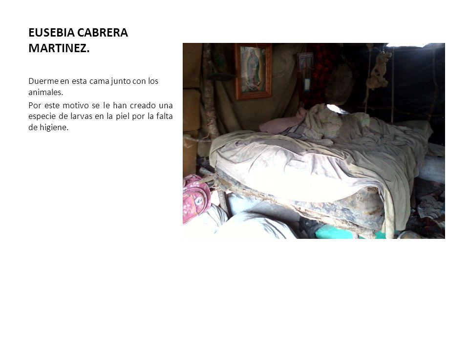 EUSEBIA CABRERA MARTINEZ. Duerme en esta cama junto con los animales. Por este motivo se le han creado una especie de larvas en la piel por la falta d